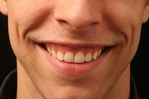 Десневая улыбка